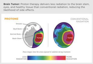 Proton therapy for brain tumor
